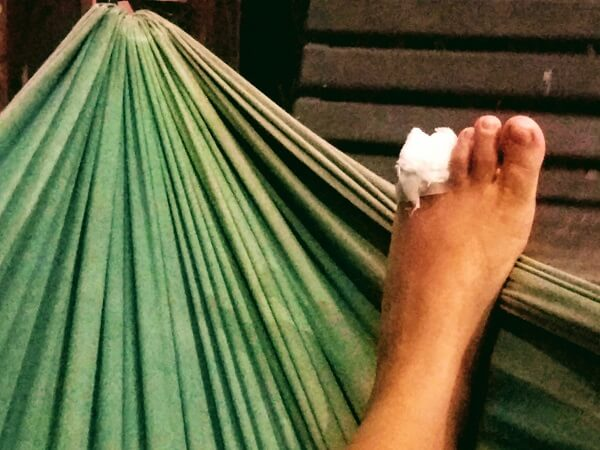 כף רגל של מיכל ]ולת על הערסל עם תחבושת באצבעות